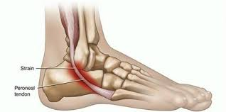 Running shoes for peroneal tendonitis - what is it